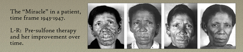 Before and After Sulphone Drug Treatment. &lt;br /&gt;<br /> &lt;br /&gt;<br /> Image Courtesy of the National Hansen&#039;s Disease Museum, Permanent Collection. Carville, LA.