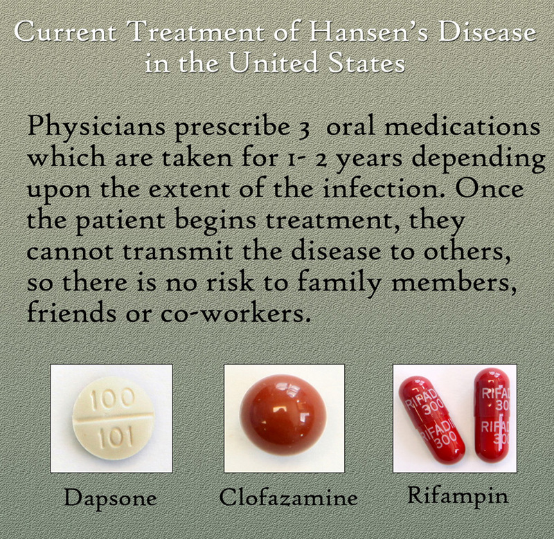 Current Drug Treatment for Hansen&#039;s Disease in the United States.&lt;br /&gt;<br />